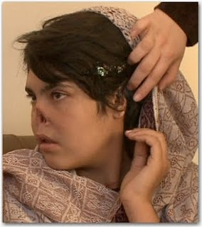 bibi-aisha-mutilacion1